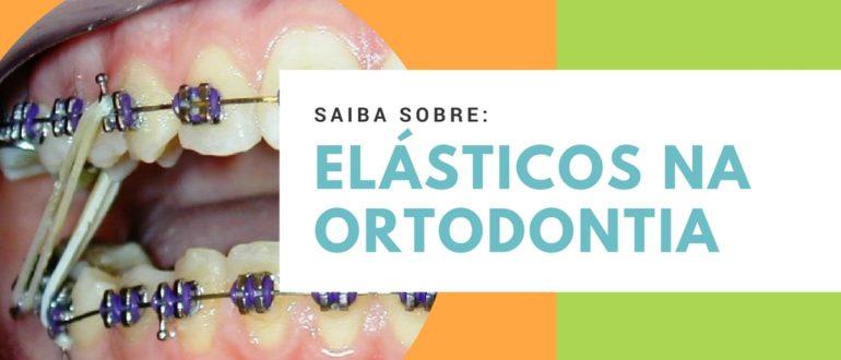 elasticos ortodontia